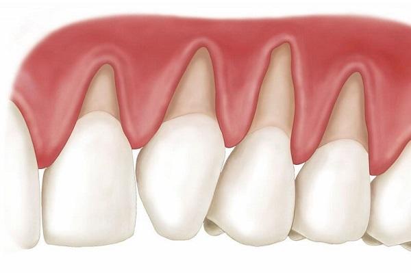 Bọc răng sứ bị tụt lợi - Nguyên nhân và cách khắc phục là gì?