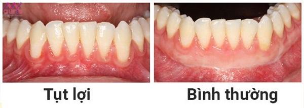 Cách khắc phục tình trạng bọc răng sứ bị tụt lợi hiệu quả
