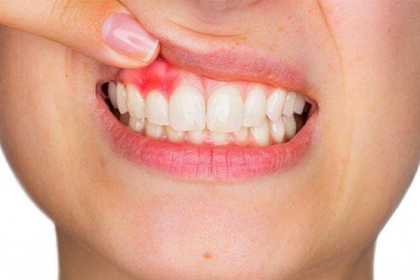 Bọc răng sứ bị viêm lợi - Nguyên nhân và cách khắc phụcBọc răng sứ bị viêm lợi - Nguyên nhân và cách khắc phục