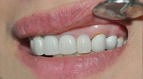 Bọc răng sứ có bị hở không ?