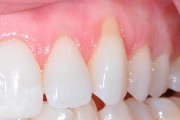 Bọc răng sứ có bị tụt lợi không ?