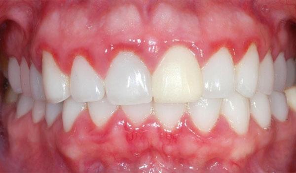 Bọc răng sứ có bị viêm lợi không ?