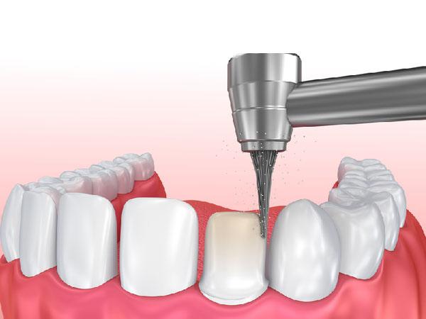 Quy trình bọc răng sứ bao lâu? Bao gồm những công đoạn gì?