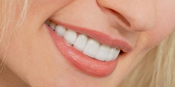 Cắt lợi, nướu răng thừa thẩm mỹ là gì?