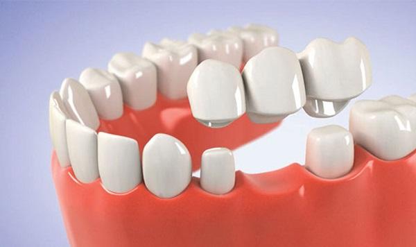 Cầu răng sứ là gì? Ưu và nhược điểm khi làm cầu răng sứ