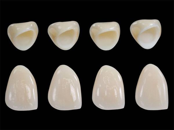 Có nên bọc răng sứ Nacera?
