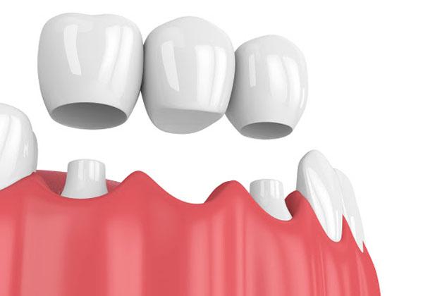 Làm cầu răng sứ có tốt không? Sử dụng được bao lâu?