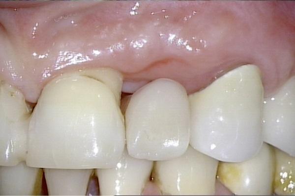 Bọc răng sứ bị hở – nguyên nhân do đâu?
