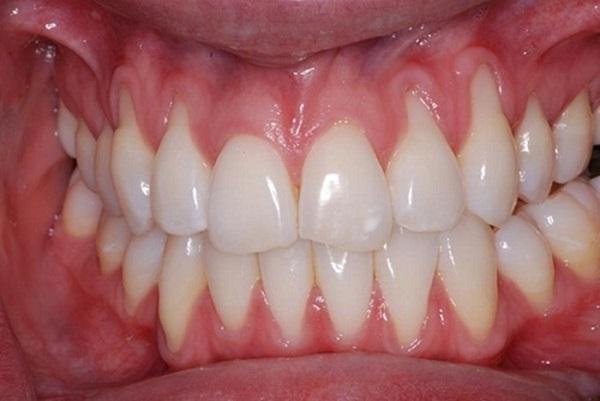 Bọc răng sứ bị tụt lợi – nguyên nhân do đâu?