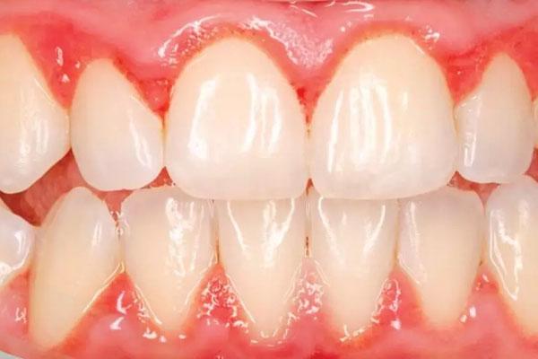 Bọc răng sứ bị viêm lợi - Nguyên nhân do đâu?