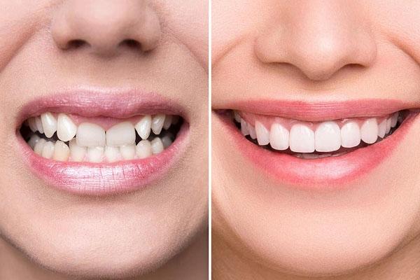 Những ai nên bọc răng sứ Nacera?