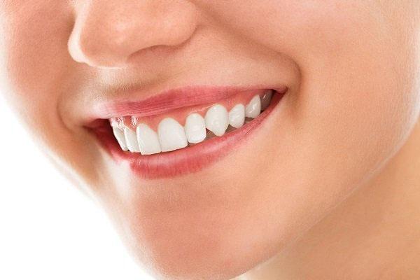 Phẫu thuật cười hở lợi ở đâu tốt nhất TP.HCM?