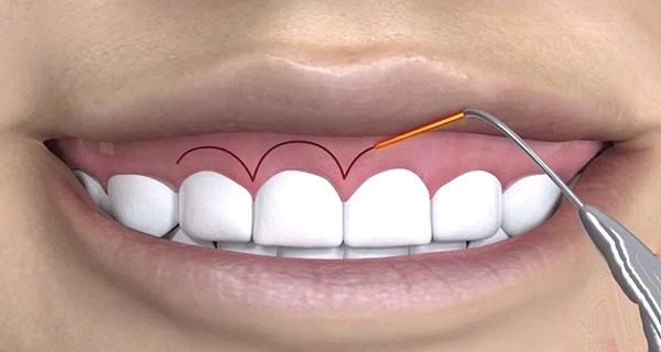 Phẫu thuật chữa cười hở lợi an toàn