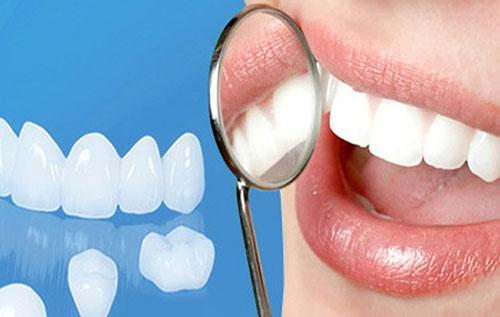 Công nghệ phủ răng sứ Invy Ultra 3P