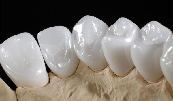 Răng sứ Nacera là gì?
