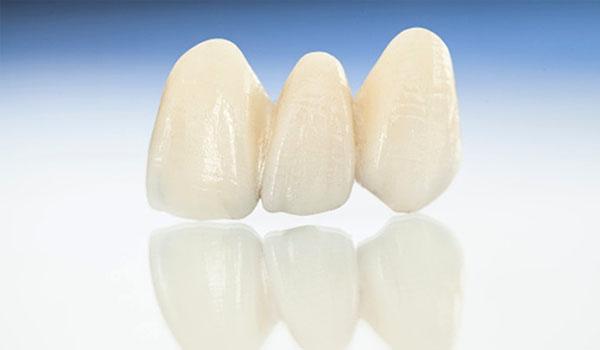 Ưu nhược điểm răng sứ Nacera