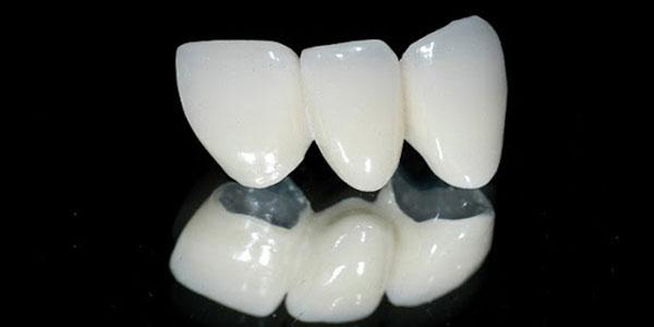 có nên bọc răng sứ zirconia không