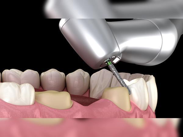 Bọc răng sứ bị cộm - Nguyên nhân và cách khắc phục