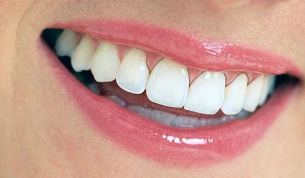 Bọc răng sứ bị đen nướu - Nguyên nhân và cách khắc phục
