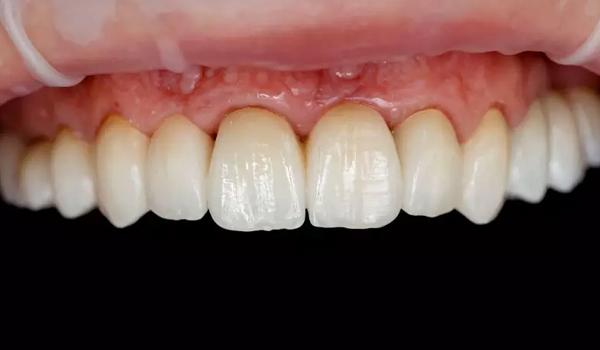 Bọc răng sứ có bị đen nướu không ?