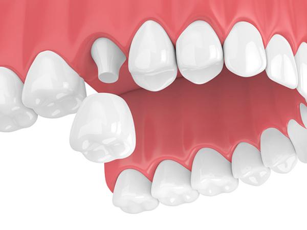 Bọc răng sứ giá bao nhiêu tiền một cái?