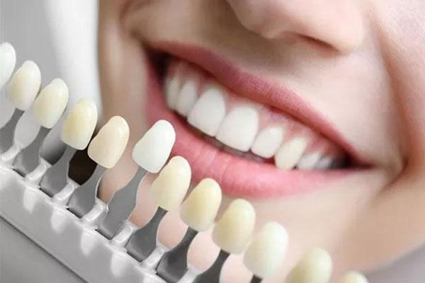 Các loại răng sứ và bảng giá từng loại trên thị trường hiện nay