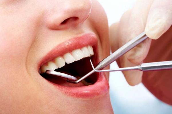 Cách khắc phục tình trạng bọc răng sứ bị đen nướu hiệu quả
