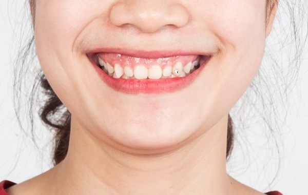 Tình trạng cười hở lợi khiến nhiều người mất đi sự tự tin của mình