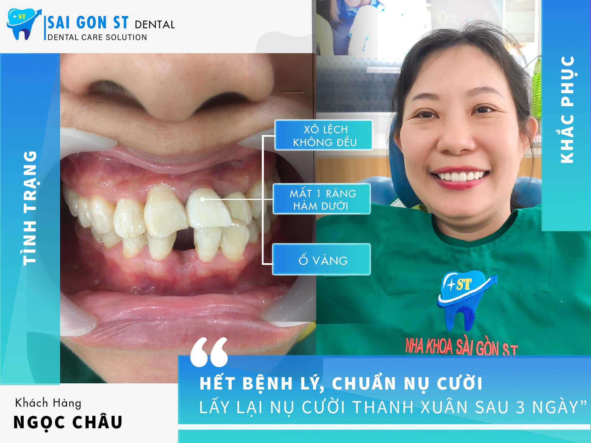 Trồng răng Implant - giải pháp tối ưu cho hàm răng bị mất