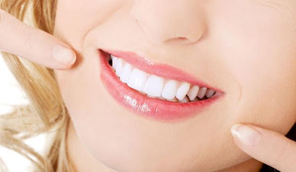 Kinh nghiệm lựa chọn loại răng sứ phù hợp với bản thân