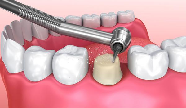 Sau khi gây tê, bác sĩ sẽ tiến hành mài răng tao cùi chụp mão sứ