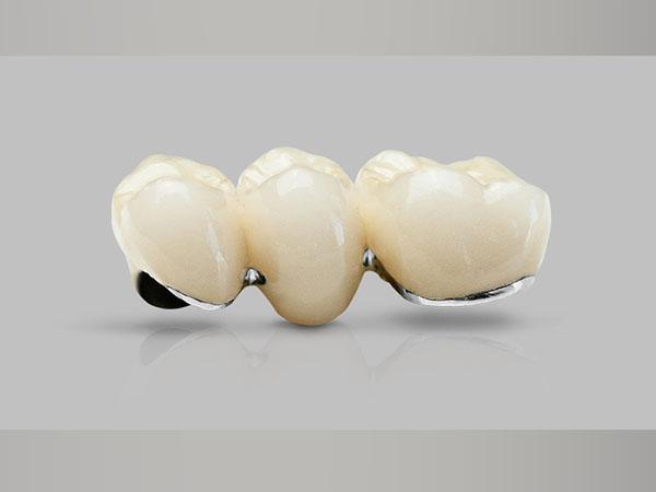 Nhược điểm của răng sứ Titan
