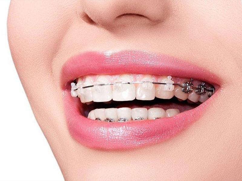 Niềng răng chỉnh nha - phương pháp khắc phục hiệu quả hàm răng nhiều khuyết điểm
