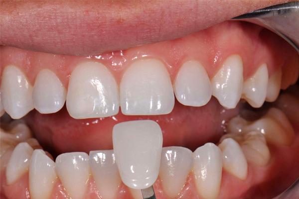 Ưu & Nhược điểm của phủ răng sứ