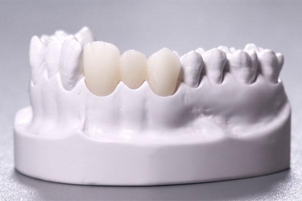 Bọc răng sứ Cercon HT có tốt không?