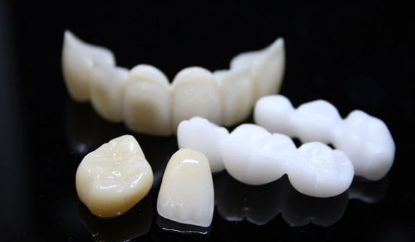 Răng sứ Emax có mấy loại? Ưu nhược điểm của từng loại