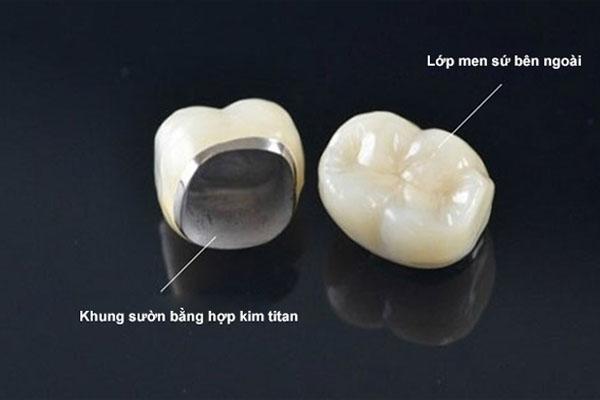 Răng sứ kim loại là nguyên nhân của hiện tượng bọc răng sứ bị đen do tính Oxy hóa