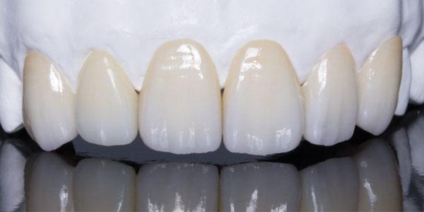 Răng sứ Zirconia là gì?