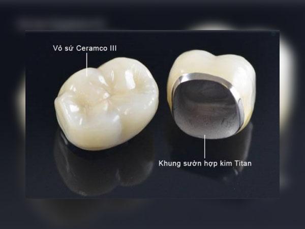 Răng sứ Titan là gì?