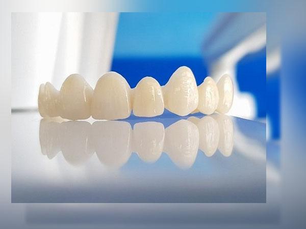 Răng sứ Titan có mấy loại?