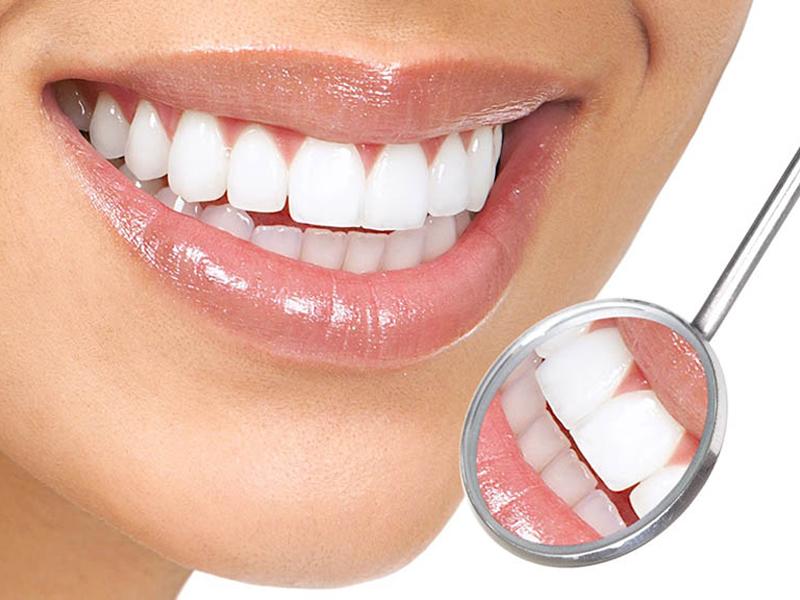 Thẩm mỹ răng sứ - dịch vụ được nhiều khách hàng ưa chuộng nhất tại nha khoa Sài Gòn ST