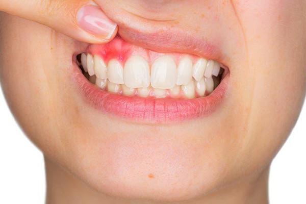 Viêm khi bọc răng sứ