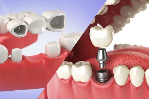Người mất răng nên làm cầu răng hay cấy ghép Implant?