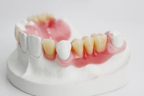 Răng tháo lắp bằng nhựa dẻo