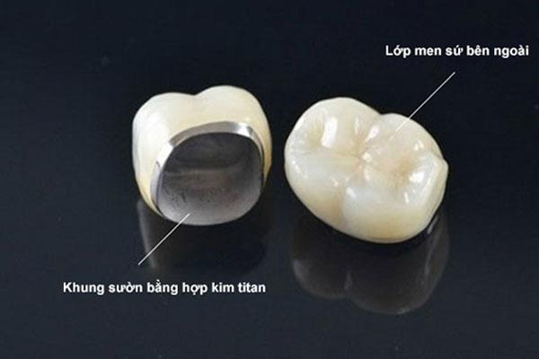 Răng sứ Titan không nhạy cảm với nhiệt độ thức ăn
