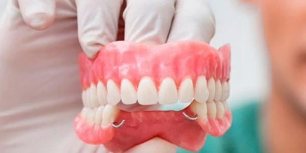 Bảng giá làm răng tháo lắp bao nhiêu?