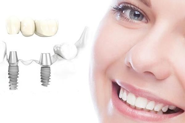 Có trồng răng khểnh được không? Trồng có đau không?