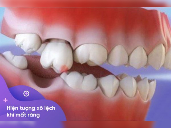 Hậu quả của mất răng hàm số 7
