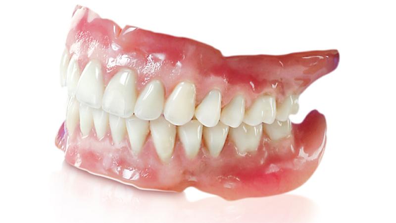 Quy trình trồng răng tháo lắp mất bao lâu?
