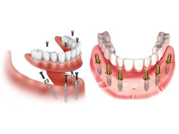 Trồng răng hàm số 6 giá bao nhiêu?